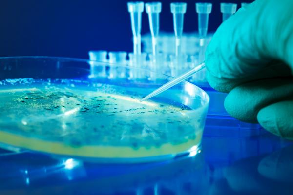 Bakterielle Kolonien in einer Petrischale