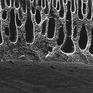 Dialyseschlauch aus regenerierter Cellulose - Standard