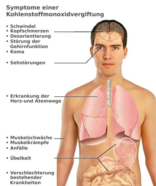 Symptome einer Kohlenmonoxid-Vergiftung