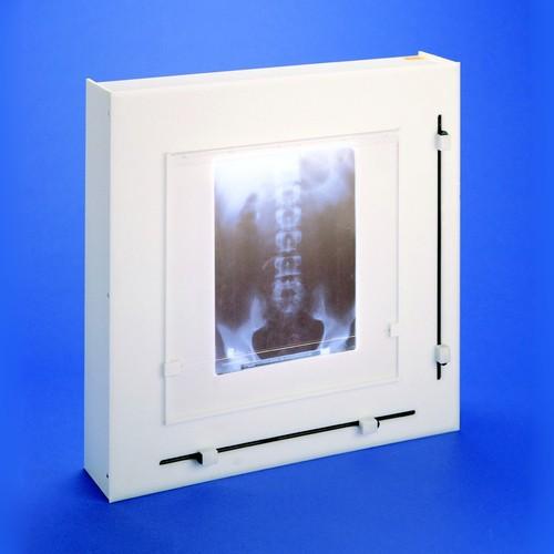 Röntgenbildbetrachter